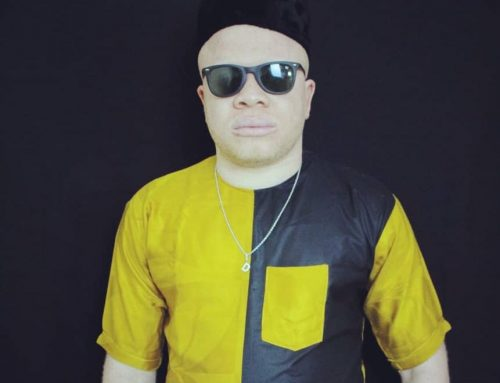 Exclusive Interview: « Entertainment Doesn't Seem To Go Smoothly With Albinism » Cameroonian Singer Don ChaeuLe Testifies!